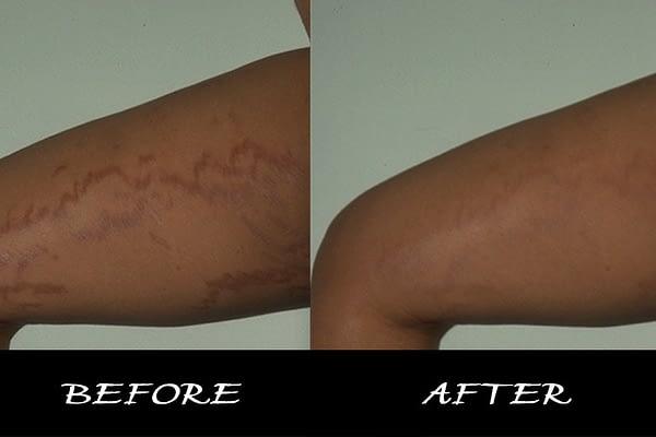 BC Organic Super Intense Stretch Mark/Scar Cream